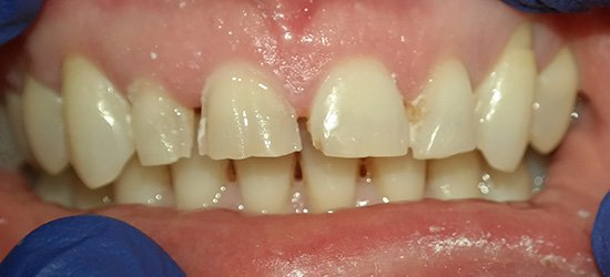 Yellow gapped smile before treatment