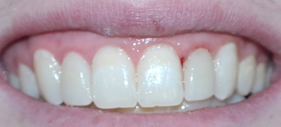 Properly aligned front teeth
