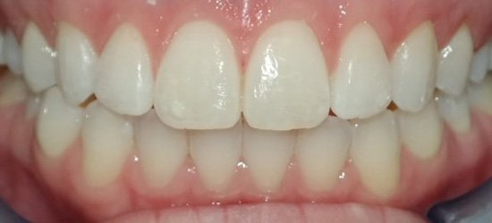 Closed smile after treatment