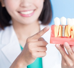 Woman holding model of a dental implant.